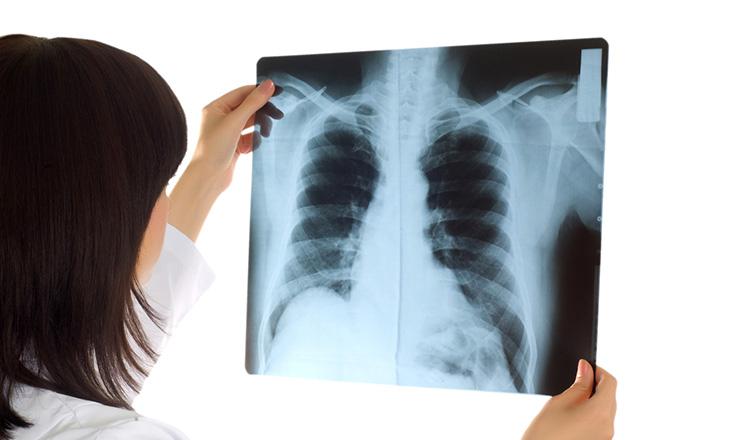 保険 が 不要 ん がん保険不要論を現役バリバリのがん患者が考える話